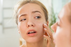 Avoid Irritating Ingredients that Aggravate Dry Skin
